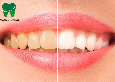 Dudas sobre el blanqueamiento dental