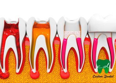 Qué es una endodoncia y cómo se trata.
