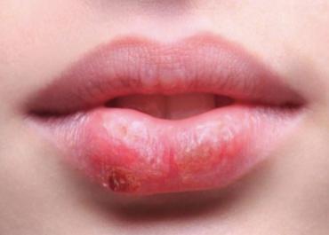 Qué es un herpes