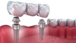 protesis sobre implante