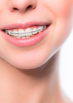 Ortodoncia TEMP